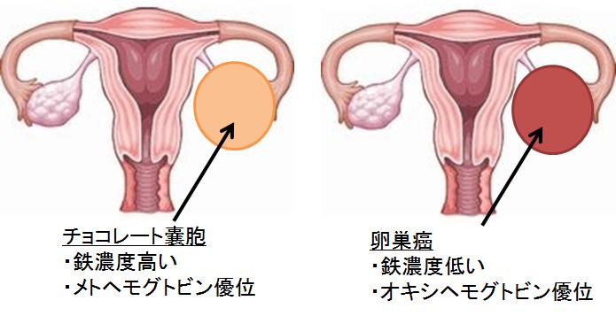チョコレート嚢胞におけるがん化