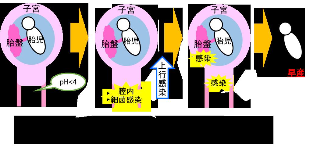 早産の原因の一つは絨毛膜用膜炎
